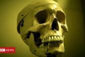 Morbid exhibits of UCL's Pathology Museum