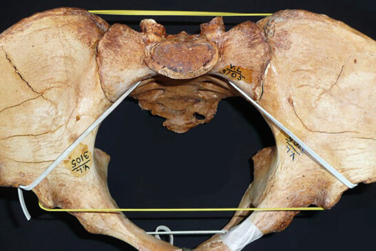 Why Textbooks May Need to Update What They Say About Birth Canals